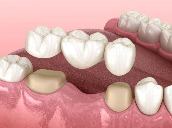 Zahnbrücke mit drei Zähnen über Molar und Prämolar