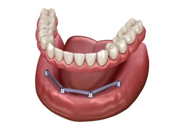 Herausnehmbarer Mandibulärer Zahnersatz