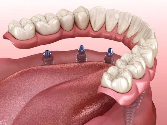 Unterkieferprothese durch Zahnimplantate unterstützt