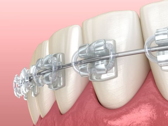 Klare, festsitzende orthopädische Zahnspange