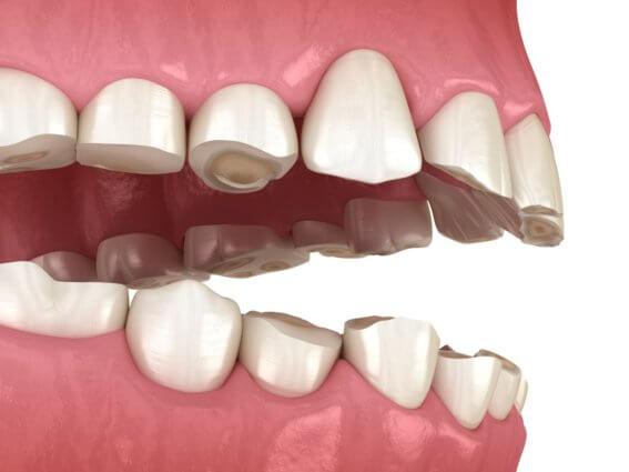 Zähneknirschen - Verlust des Zahngewebes