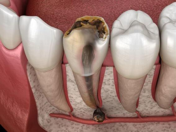 Nicht erhaltungsfähiger, zerstörter Zahn